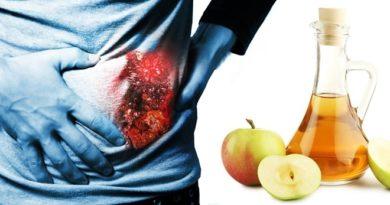 el vinagre de manzana para cálculos renales
