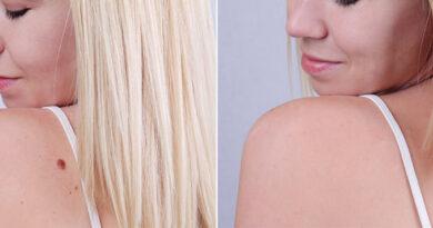 verrugas en la piel antes y después