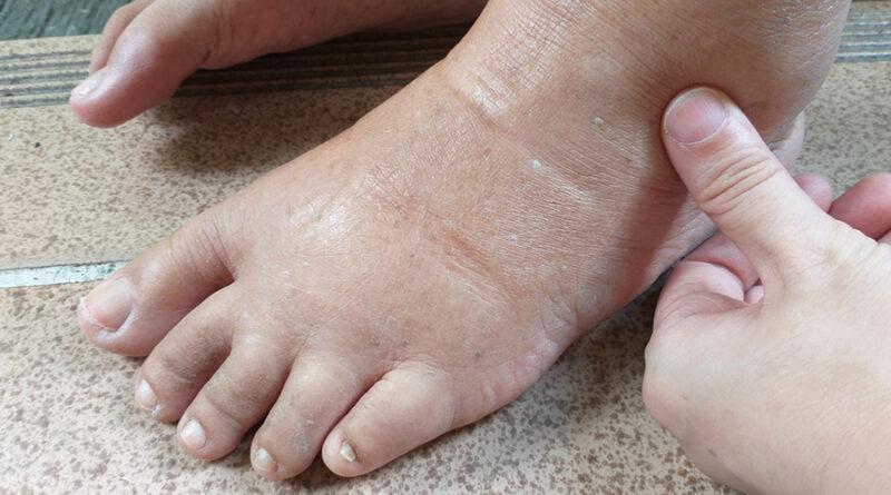 Retencion de líquidos en las piernas