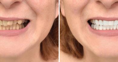 dientes con sarro antes y después