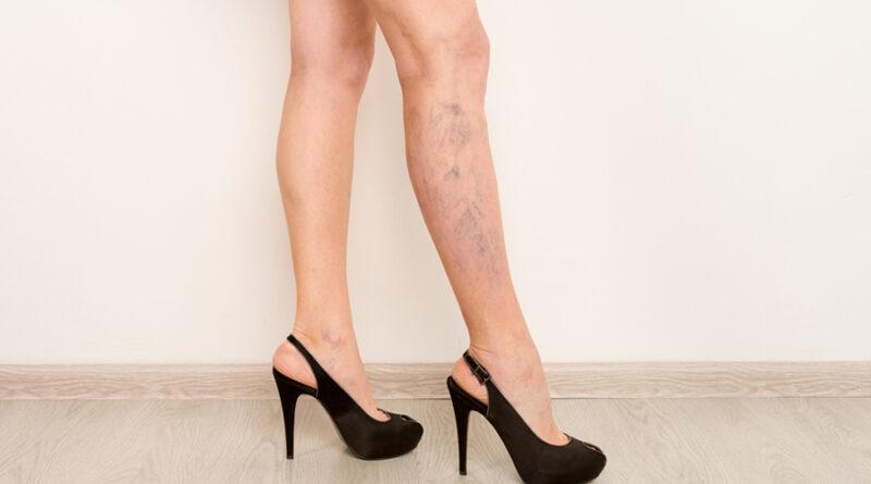 várices en piernas de mujer