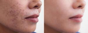 acnes antes y despues