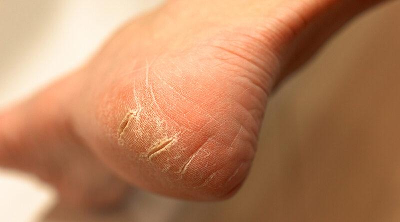 Remedios caseros para reparar talones agrietados